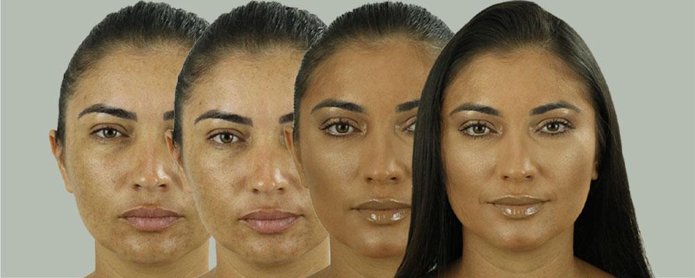Imagem ilustrando as fases de maquiagem para cobrir um rosto com melasma.